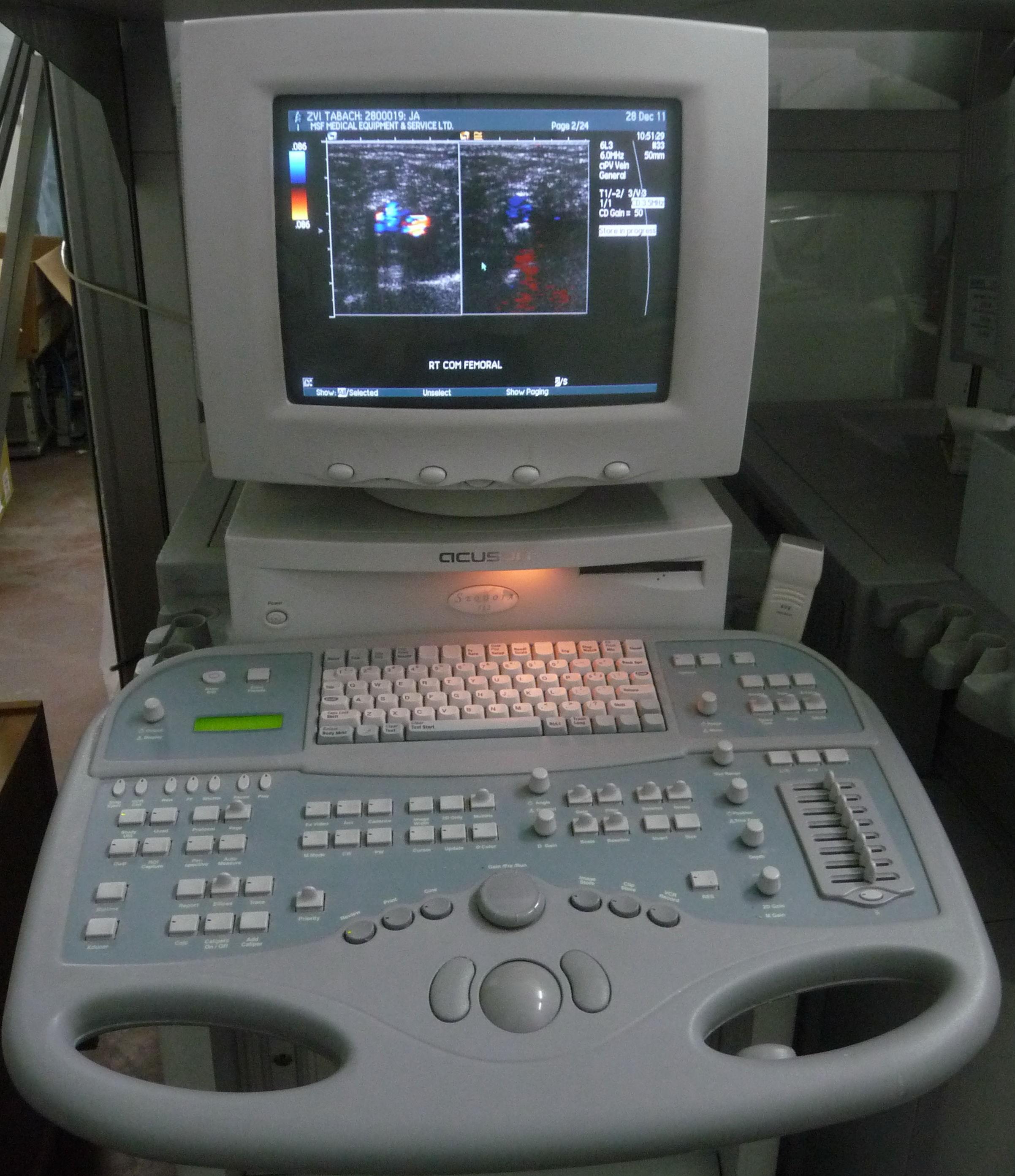 siemens acuson sequoia c512 cardiac ultrasound model information rh dotmed com Acuson Ultrasound Machine Acuson Ultrasound Machine