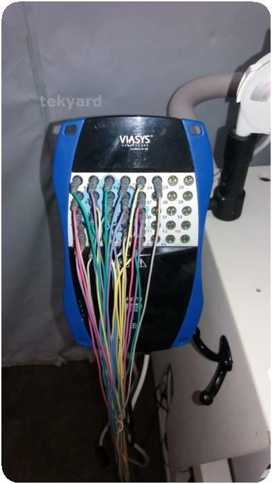 VIASYS HEALTHCARE NicoletOne EEG Unit