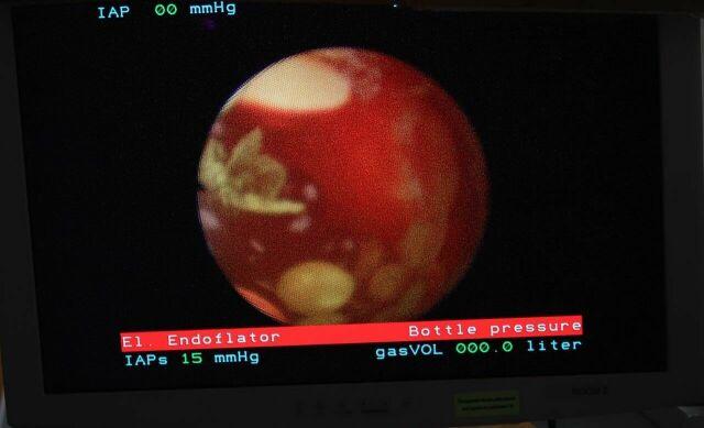 STORZ 11101RP2 Rhinolarynogoscope