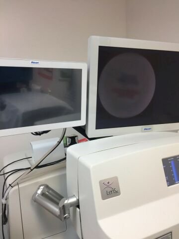 ALCON LenSx Laser - Femto