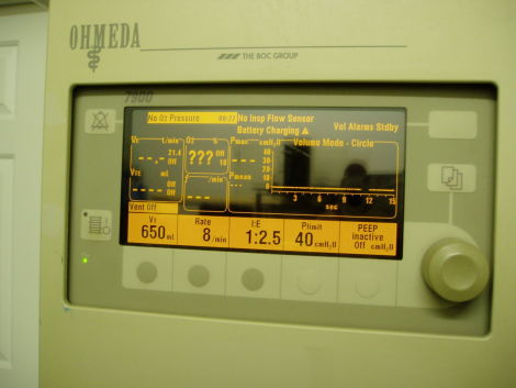 DATEX-OHMEDA Excel 210SE Anesthesia Machine for sale