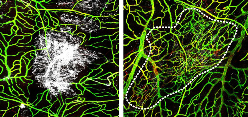 DOTmed com - MR reveals immune cell role in traumatic brain